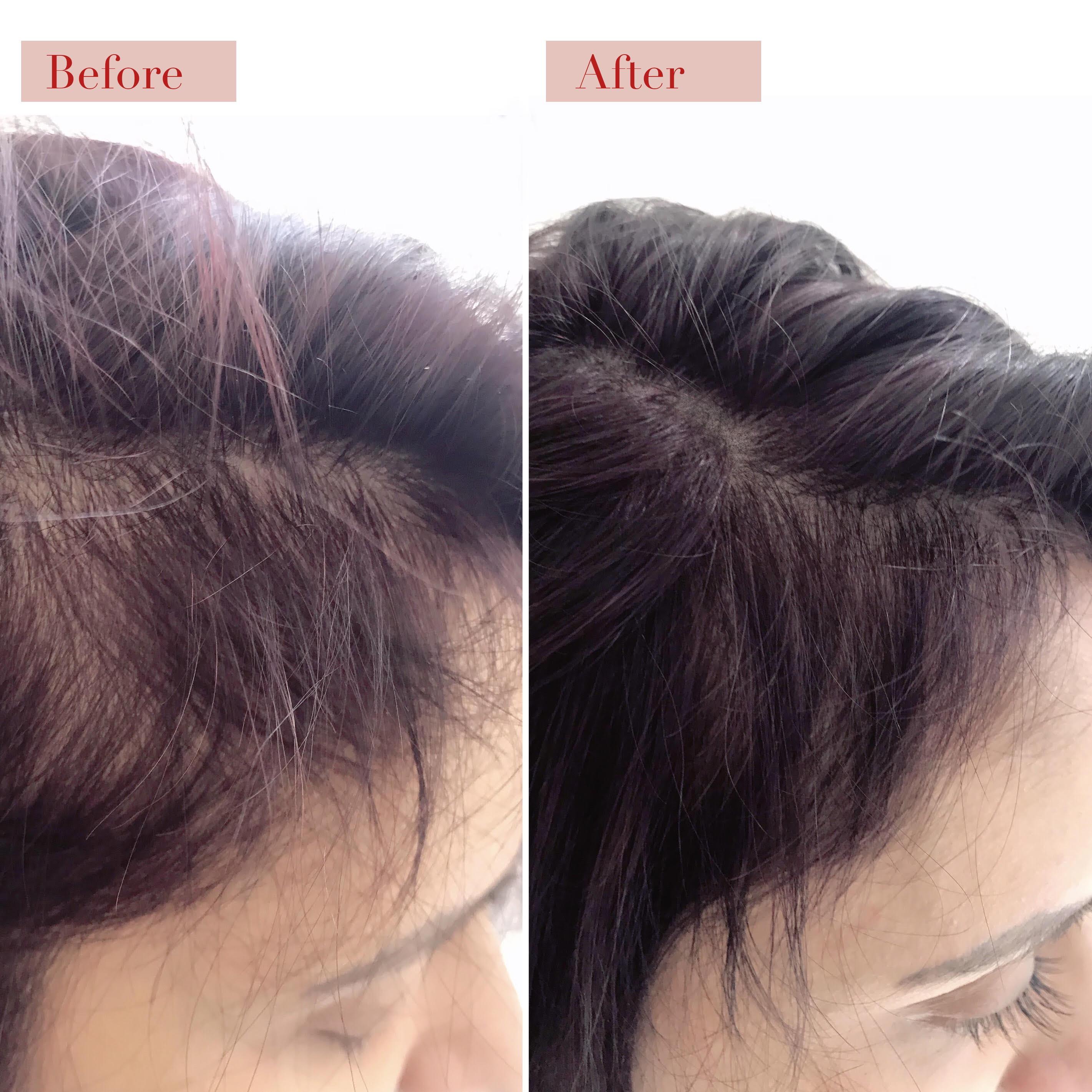 Scalp Micropigmentation - Hair Loss, Hairfall, Hair Thinning, Bald